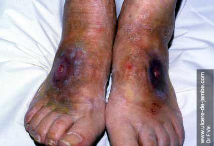 ulcère sur dos du pied