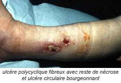 ulcère polycyclique fibreux