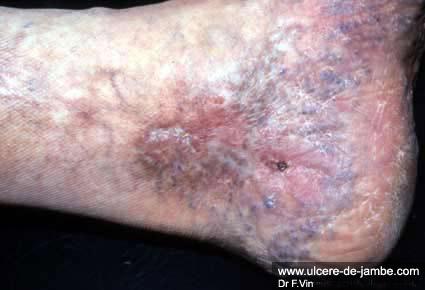 ulcère veineux dû à une rupture hémorragique