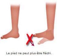 Le pied ne peut plus être fléchi