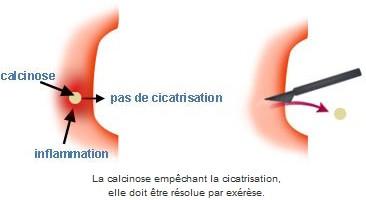 calcinose