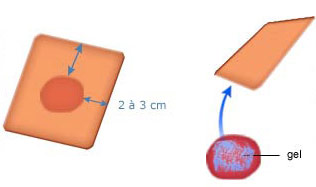 Les hydrocolloïdes