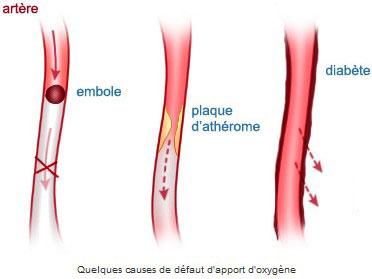 Quelques causes de défaut d'apport d'oxygène
