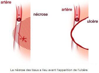 La nécrose des tissus a lieu avant l'apparition de l'ulcère