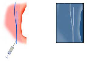 Injection dans une veine pour phlébographie