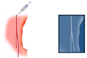 Injection dans une artère pour artériographie