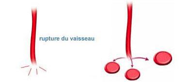 La rupture d'un vaisseau sanguin provoque la libération d'hématies dans les tissus