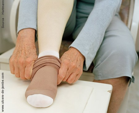 Ulcère de jambe
