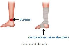 Complications de l'ulcère