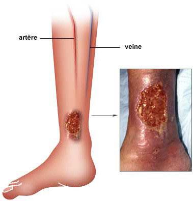 comment soigner un ulcere au pied