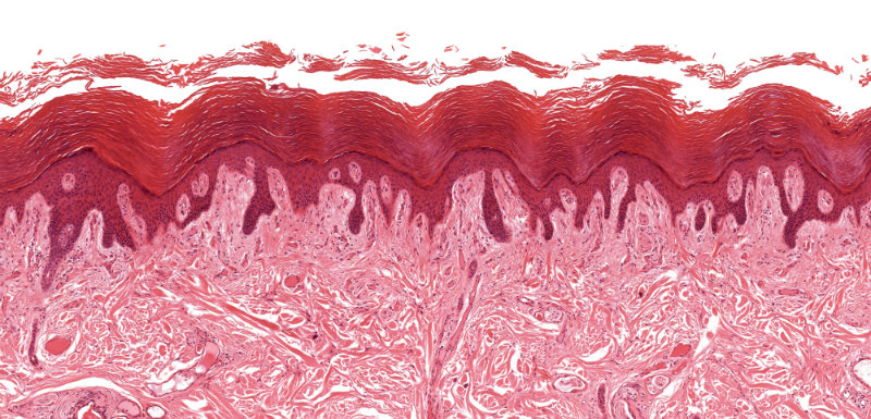 biopsie cutanée