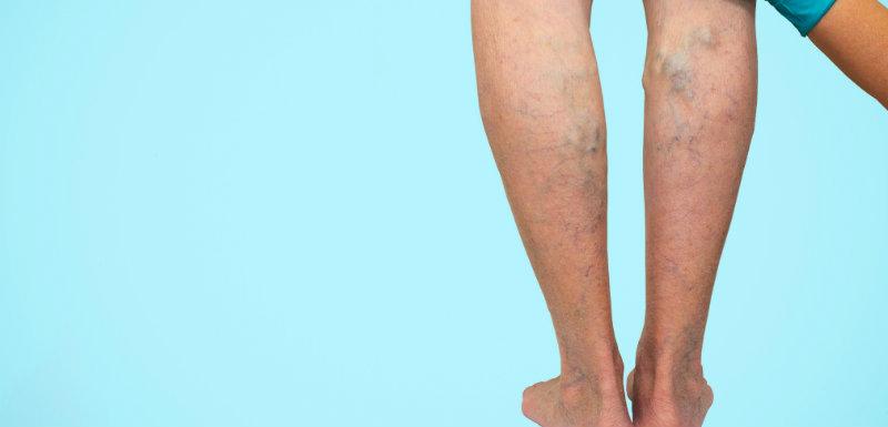 varices sur pieds de femme traitements docteur palpe