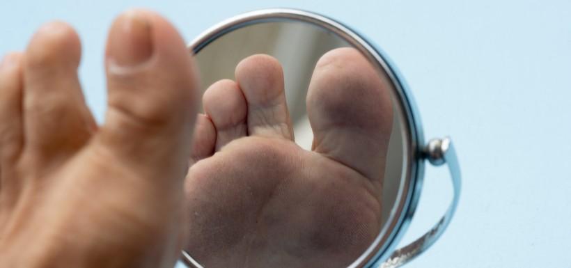 L'autofluorescence cutanée face au risque d'ulcère du pied diabétique